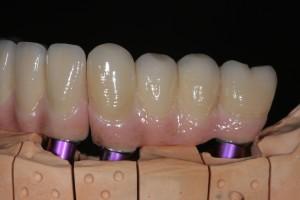 Implantatgetragene NEM- Brücke Keramikverblendet mit keramischer Rekonstruktion der Gingiva (künstliches Zahnfleisch) festsitzend