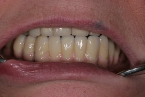 Implantagetragene Brücke aus NEM mit Keramikverblendung und Rekonstruktion des Zahnfleisches festsitzend