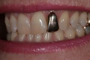 Grillz aus Gold - Kosten 199€ - muss mit prov. Zahnzement befestigt werden