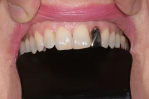 Grillz - Einzelzahn Gold - kann mehrere Tage im Mund verweilen - ist abnehmbar