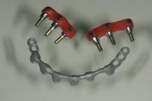 Implantatgerüst mit Stegkonstruktion aus NEM