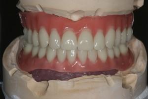 Implantatkonstruktion auf dem Modell