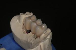 Fertige Metallkeramikkronen auf Implantaten