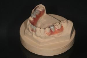 Valplast  - Prothese ein Nylonmaterial auf dem Modell - völlig ohne Monomere oder schädliche Bestandteile