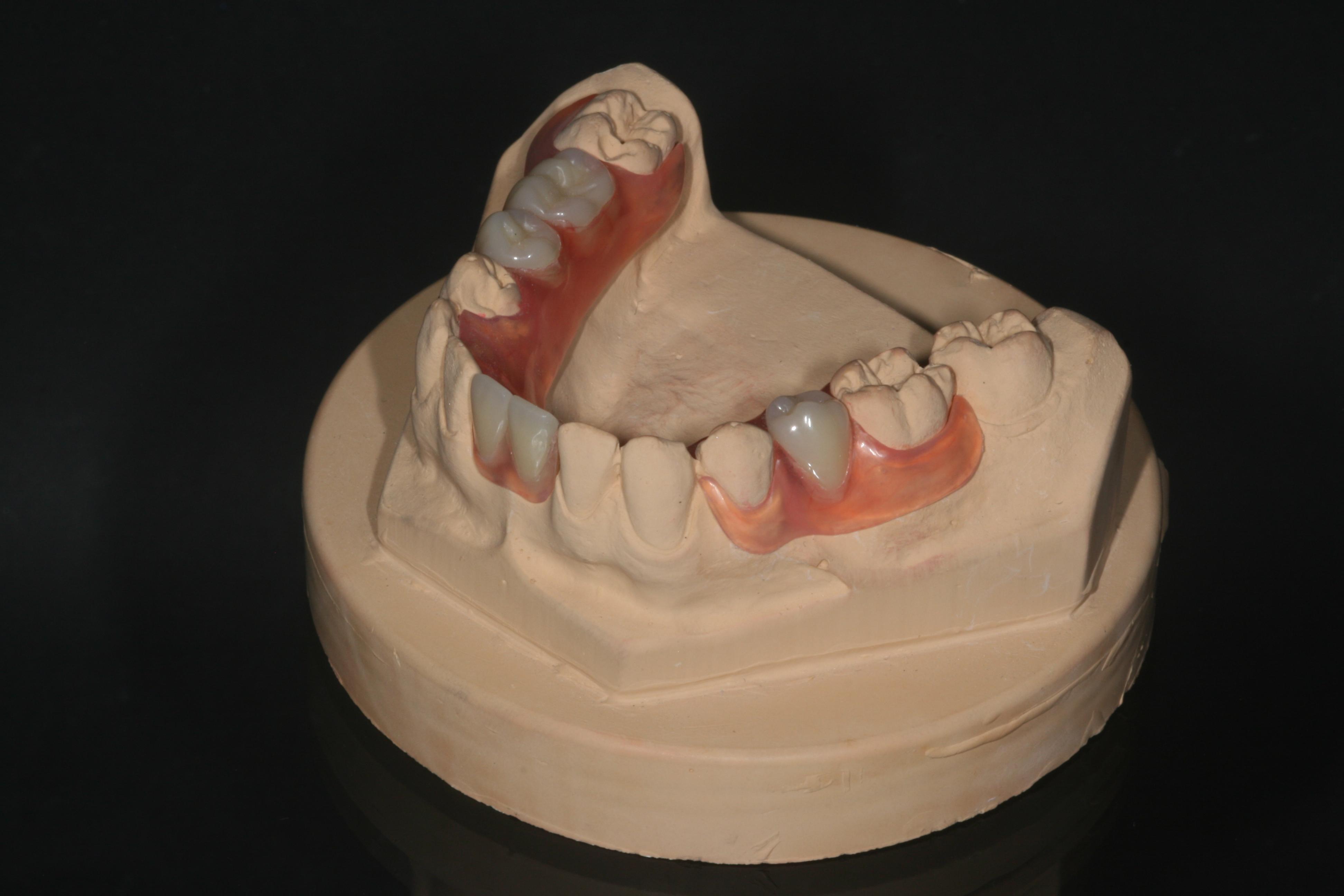 Valplast Prothese Abrechnung : herausnehmbarer ze totalprothesen teilprothesen thumfart 39 s zahntechnik gmbh ~ Themetempest.com Abrechnung