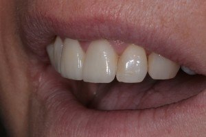 zwei Frontzähne werden überkront mit Vollkeramik - die Meisterdisziplin des Zahntechnikers